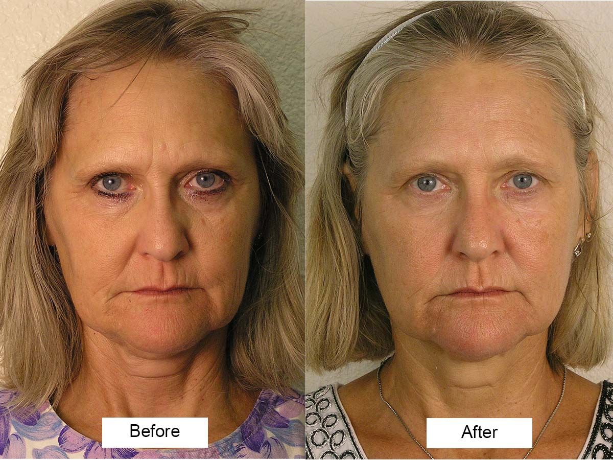 Good Microcurrent facial before and after agree